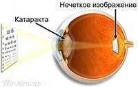 Лечение катаракты народными