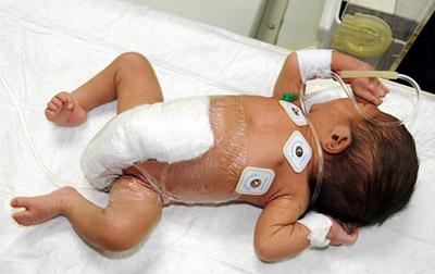 Самое большое счастье, когда рождаются дети. А если новорожденный ребенок болен, что делать?