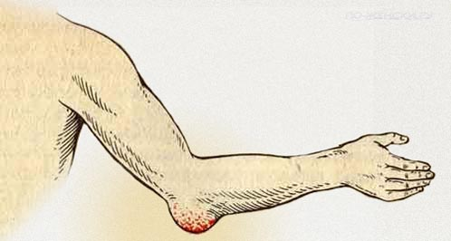 Лечение бурсита