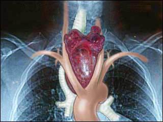 Зоб - заболевание щитовидной железы