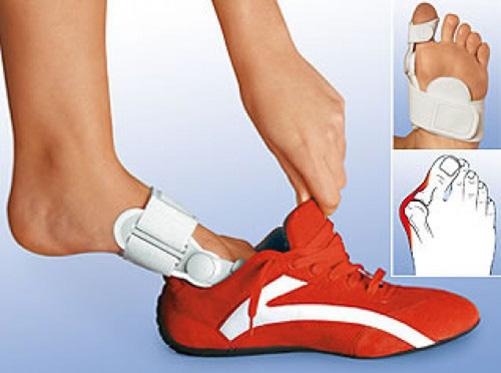 Косточки на ногах или вальгусная деформация стопы